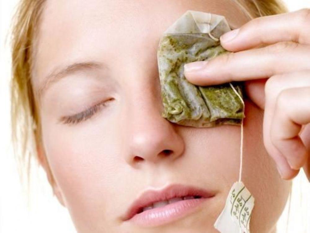 علاج الهالات السوداء تحت العين وبعض النصائح لتجنب الاصابة بها الطب العربي البديل