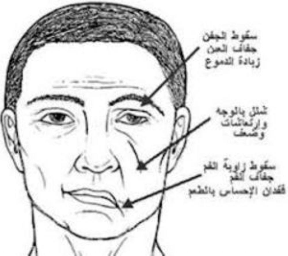 تجربتي مع العصب السابع فائدة استشارة وعلاج خاص بالاعشاب والطب البديل الطب العربي البديل