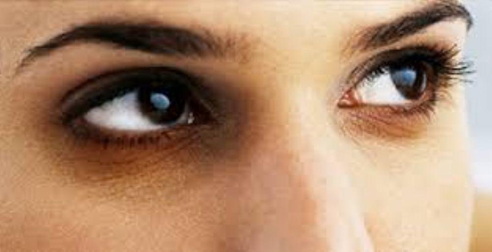 a24388f44 ملف كامل عن الهالات السوداء حول العين وعلاجها بالطب البديل والاعشاب ...